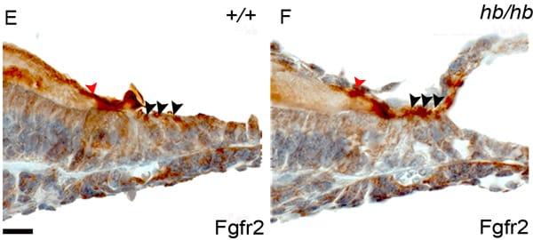 Immunohistochemistry (Formalin/PFA-fixed paraffin-embedded sections) - Anti-FGFR2 antibody (ab10648)