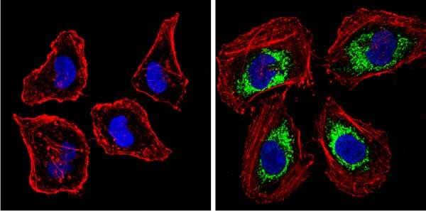 Immunocytochemistry/ Immunofluorescence - Anti-BACE1 antibody (ab10716)