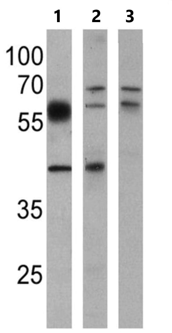 Western blot - Anti-BACE1 antibody (ab10716)