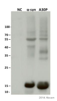 Western blot - Anti-Alpha-synuclein (phospho Y125) antibody (ab10789)