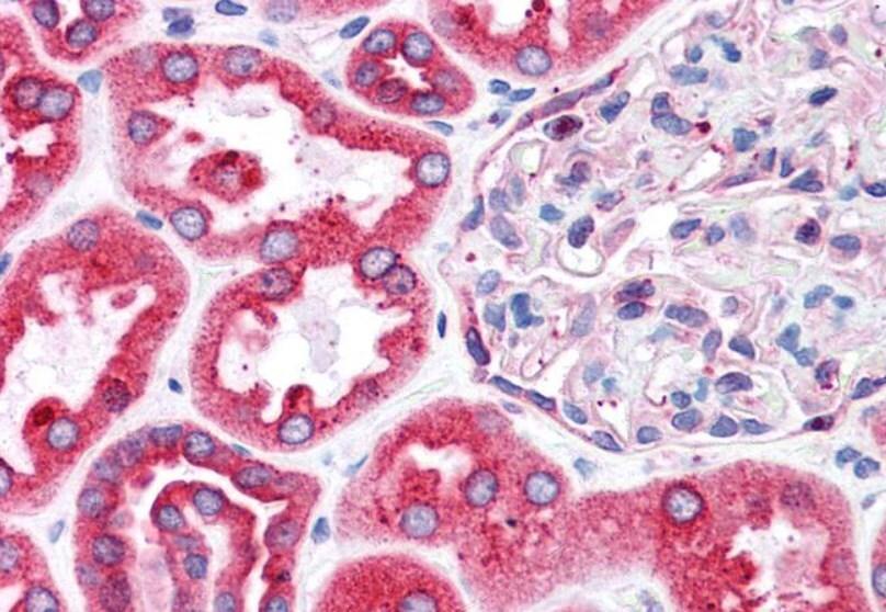 Immunohistochemistry (Formalin/PFA-fixed paraffin-embedded sections) - Anti-BAP31 antibody (ab10924)