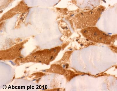 Immunohistochemistry (Formalin/PFA-fixed paraffin-embedded sections) - Anti-UCP3 antibody (ab10985)