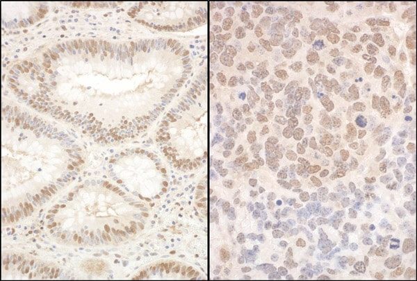 Immunohistochemistry (Formalin/PFA-fixed paraffin-embedded sections) - Anti-PQBP1 antibody (ab100797)