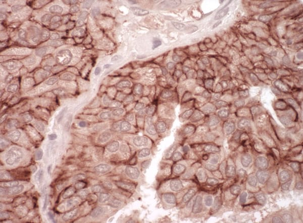 Immunohistochemistry (Formalin/PFA-fixed paraffin-embedded sections) - Anti-Coxsackie Adenovirus Receptor/hCAR antibody (ab100811)