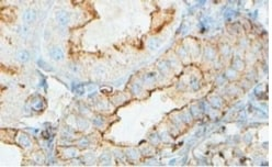 Immunohistochemistry (Formalin/PFA-fixed paraffin-embedded sections) - Anti-ACTBL2 antibody (ab100869)