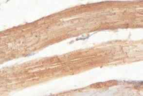 Immunohistochemistry (Formalin/PFA-fixed paraffin-embedded sections) - Anti-HLCS antibody (ab100925)