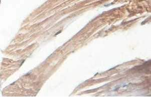 Immunohistochemistry (Formalin/PFA-fixed paraffin-embedded sections) - Anti-ABLIM2 antibody (ab100926)