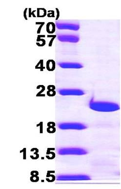 SDS-PAGE - Recombinant Human Centrin 3 protein (ab100940)