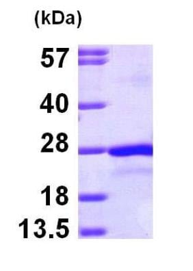 SDS-PAGE - Recombinant Human PTP4A2/PRL2 protein (ab100985)