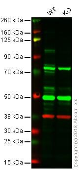 Western blot - Anti-SATB1 antibody (ab101085)