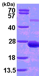 SDS-PAGE - Recombinant Human ADAT2 protein (ab101153)