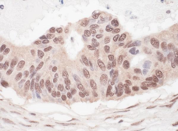 Immunohistochemistry (Formalin/PFA-fixed paraffin-embedded sections) - Anti-L3MBTL2 antibody (ab101272)