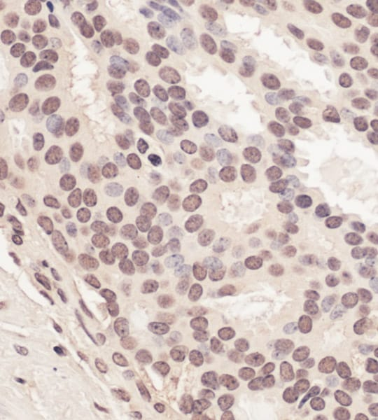 Immunohistochemistry (Formalin/PFA-fixed paraffin-embedded sections) - Anti-RING2 / RING1B / RNF2 antibody (ab101273)