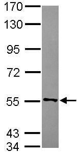 Western blot - Anti-CYB5R4 antibody (ab101342)