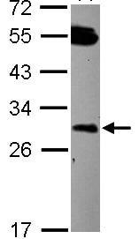 Western blot - Anti-DCUN1D2 antibody (ab101364)