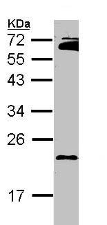 Western blot - Anti-RAP2B antibody (ab101369)