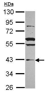 Western blot - Anti-VPS36 antibody (ab101379)