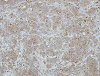 Immunohistochemistry (Formalin/PFA-fixed paraffin-embedded sections) - Anti-BRI3 antibody (ab101389)