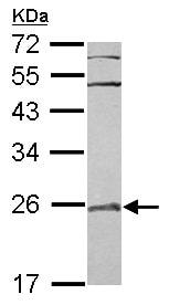 Western blot - Anti-RAB29 antibody (ab101394)