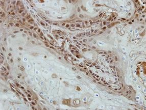 Immunohistochemistry (Formalin/PFA-fixed paraffin-embedded sections) - Anti-Sohlh2 antibody (ab101402)