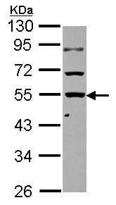 Western blot - Anti-KLHDC4 antibody (ab101454)