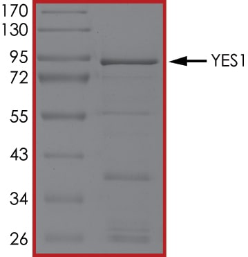 SDS-PAGE - Recombinant human Yes1 protein (ab101504)
