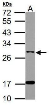 Western blot - Anti-ITM2B antibody (ab101522)