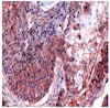 Immunohistochemistry (Formalin/PFA-fixed paraffin-embedded sections) - Anti-CD44 antibody [SP37] (ab101531)