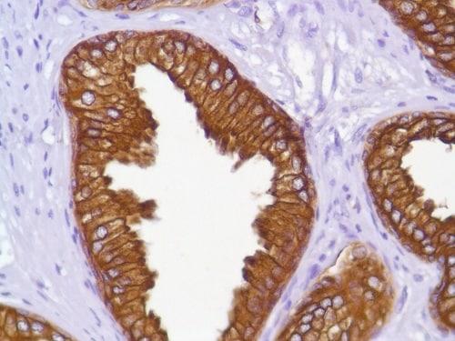 Immunohistochemistry (Formalin/PFA-fixed paraffin-embedded sections) - Anti-Cytokeratin 18 antibody [SP69], prediluted (ab101542)