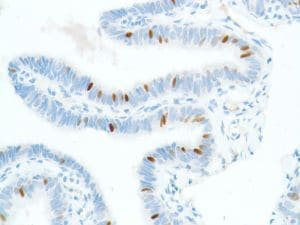 Immunohistochemistry (Formalin/PFA-fixed paraffin-embedded sections) - Anti-SOX2 antibody [SP76] - N-terminal, prediluted (ab101547)