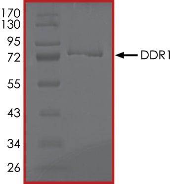 SDS-PAGE - Recombinant human MCK10/NEP protein (ab101591) (ab101591)