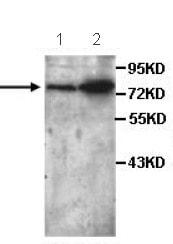 Western blot - Anti-P4HA3 antibody (ab101657)