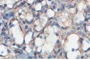 Immunohistochemistry (Formalin/PFA-fixed paraffin-embedded sections) - Anti-Centaurin alpha 2 antibody (ab101675)