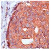 Immunohistochemistry (Formalin/PFA-fixed paraffin-embedded sections) - Anti-Calpastatin antibody [SP82] (ab101684)