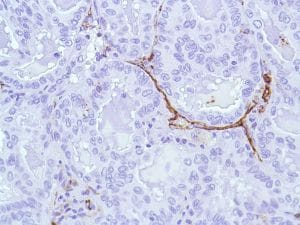 Immunohistochemistry (Formalin/PFA-fixed paraffin-embedded sections) - Anti-CD31 antibody [SP38] - C-terminal, prediluted (ab101686)
