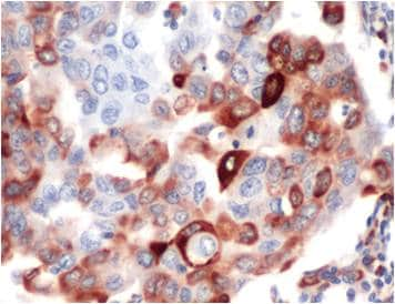 Immunohistochemistry (Formalin/PFA-fixed paraffin-embedded sections) - Anti-RPS6 (phospho S235 + S236) antibody [SP50] (ab101691)