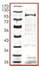 SDS-PAGE - Recombinant human DCAMKL1 protein (ab101777)
