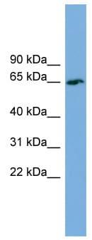 Western blot - Anti-TBC1D24 antibody (ab101933)