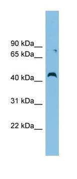Western blot - Anti-CCBE1 antibody (ab101967)