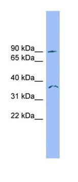 Western blot - Anti-SDCCAG8 antibody (ab101969)