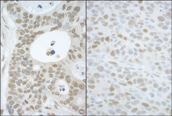 Immunohistochemistry (Formalin/PFA-fixed paraffin-embedded sections) - Anti-CAND1 antibody (ab101987)