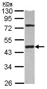 Western blot - Anti-GNAI1 antibody (ab102014)