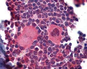 Immunohistochemistry (Formalin/PFA-fixed paraffin-embedded sections) - Anti-NKX2.3 antibody (ab102040)