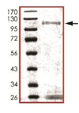 SDS-PAGE - Recombinant human IKK alpha protein (ab102103)