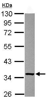 Western blot - Anti-FN3K-RP antibody (ab102475)