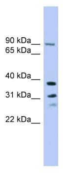Western blot - Anti-LHPP antibody (ab102546)