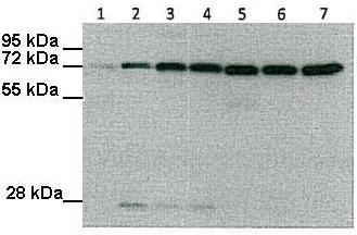 Western blot - Anti-Ndufs1 antibody (ab102552)