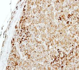 Immunohistochemistry (Formalin/PFA-fixed paraffin-embedded sections) - Anti-MTMR14 antibody (ab102575)