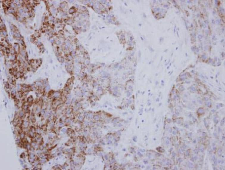 Immunohistochemistry (Formalin/PFA-fixed paraffin-embedded sections) - Anti-PYCR1 antibody (ab102601)