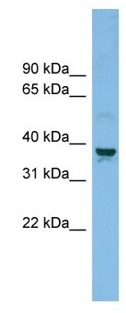 Western blot - Anti-ZnT-3 antibody (ab102611)